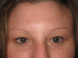 Before Picture (eyebrows)