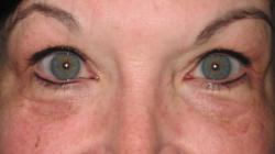 After Picture (eyeliner)