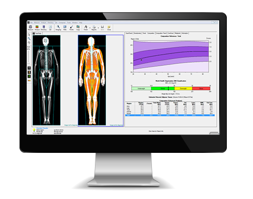 Screenshot of DEXA Body Composition Scan Analysis on computer screen