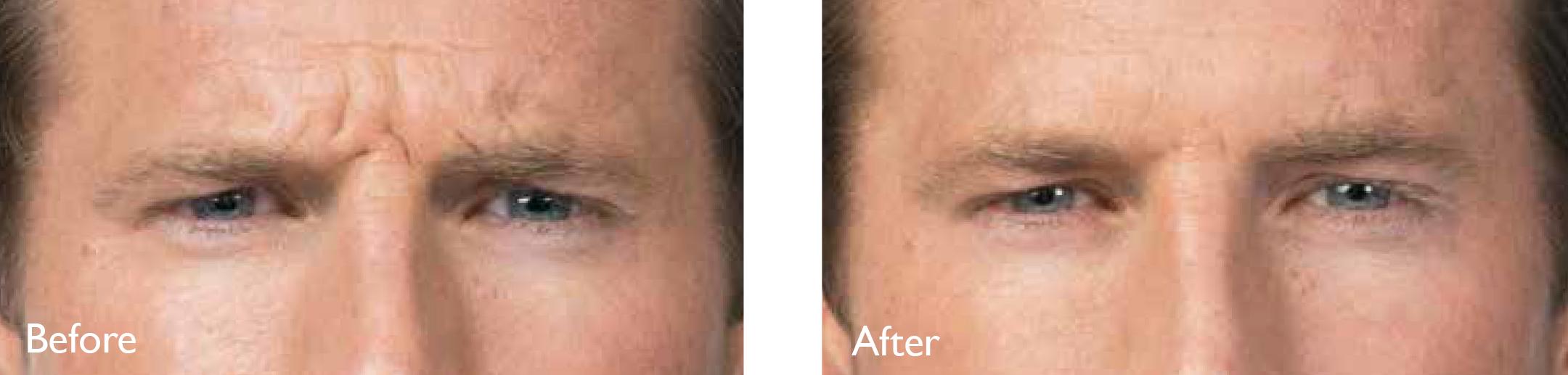 Botox® Dysport® Jeuveau® in Marin County