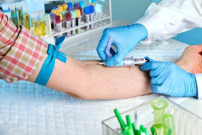 On-Site Pre-Employment Drug Testing