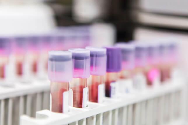 What Is Probation Drug Testing?
