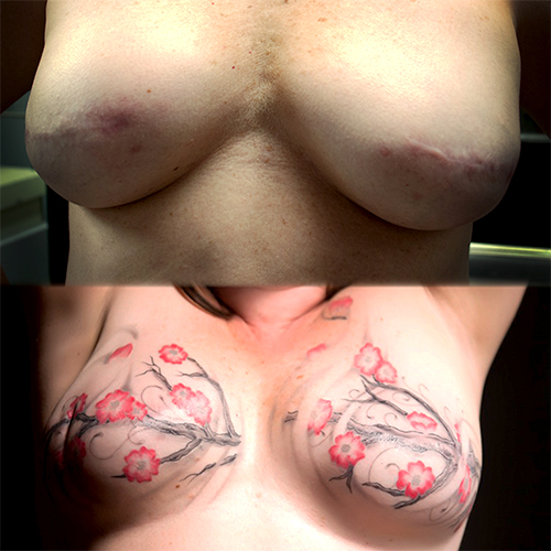mastectomy scar cover up tattoo