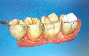 Advanced technology like the Cerec Digital Impression Model significantly aid in diagnosis and treatment.