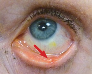 The affected inner surface of the eyelid is more irritated and inflamed than surrounding areas.
