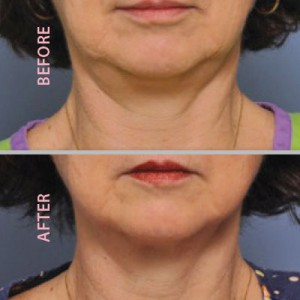 before-after-chin