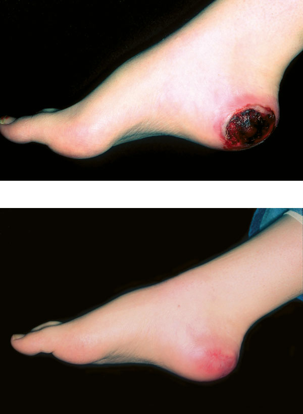 Before and after photos of diabetic foot wound healing from Hyperbaric Oxygen Therapy