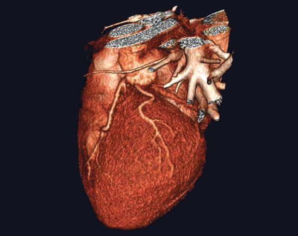 3D image of a heart taken with advanced CT technology