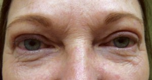 AFTER—Two months after an upper lid ptosis repair and blepharoplasty the patient looks and feels rejuvenated