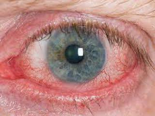 Eyelash loss, eyelid redness, and conjunctival redness - All signs of inflammatory dry eye