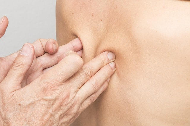 Mid Back Pain Management Trigger Point Injections