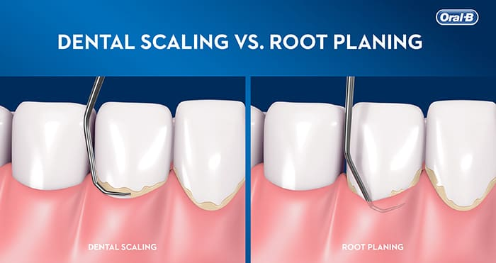 Scaling/Root Planing and Periodontal Maintenance