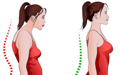 How to Prevent or Reverse Forward Head Posture