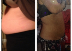 Cavi Lipo Before-After 10