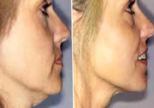 Cavi Lipo Before-After 11