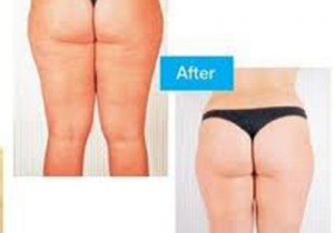 Cavi Lipo Before-After 2