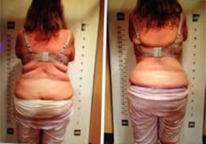 Cavi Lipo Before-After 4