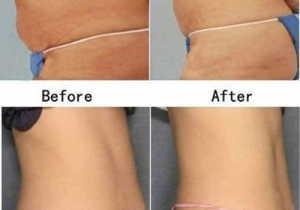 Cavi Lipo Before-After 7