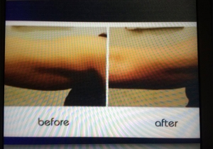Cavi Lipo Before-After 8