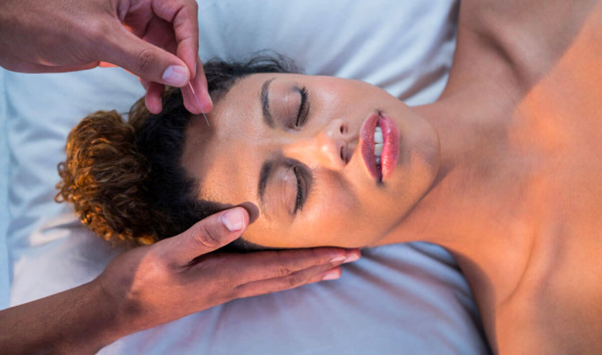 Acupuncture - As Designed Wellness
