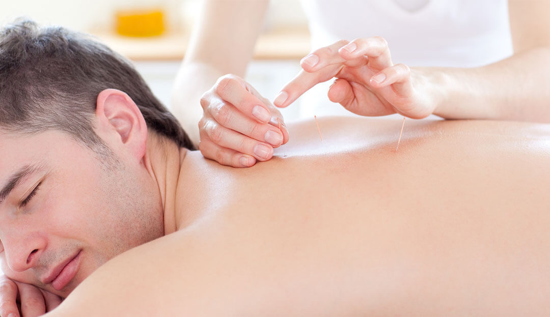 Qualities To Look For When Choosing An Acupuncturist