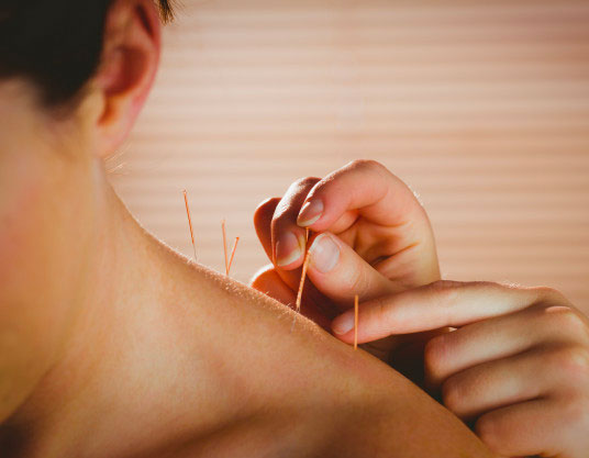 Why Hiring A Professional Acupuncturist Is Necessary?