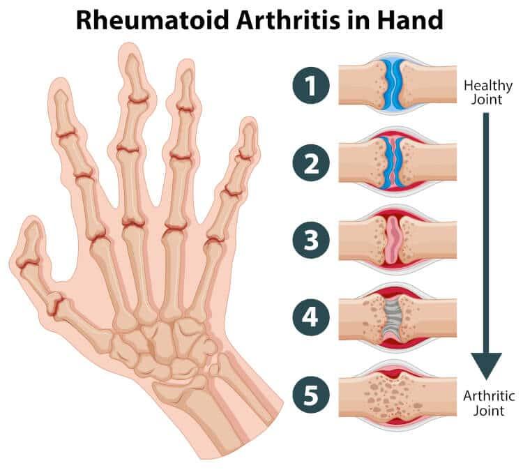 Common Autoimmune Disease Symptoms