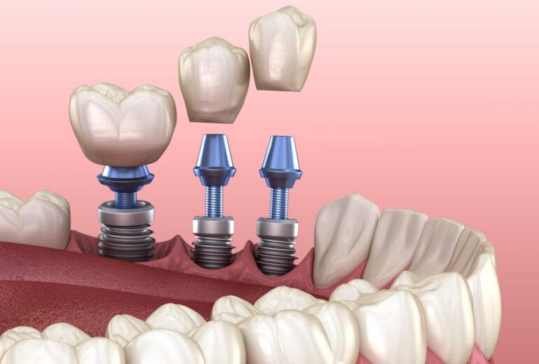 dental implants boynton beach