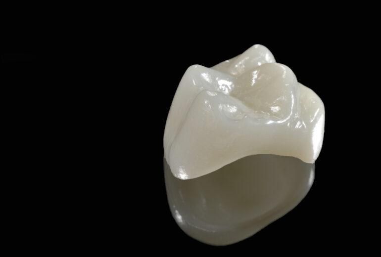 dental crown boynton beach