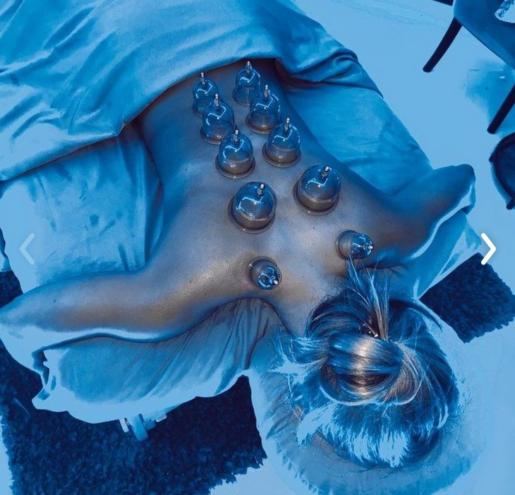 cupping- radiant wellness