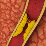 Like a clogged drain, scientists may have discovered a liquid Drano for arteries.