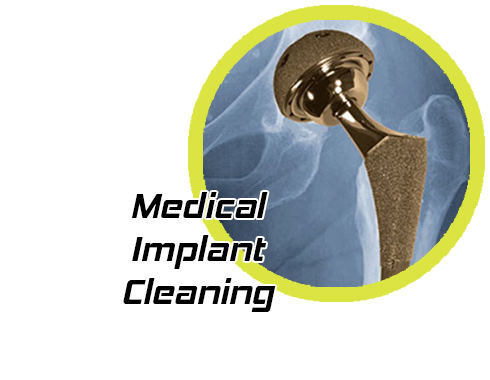 medicalImplantCleaning_grid