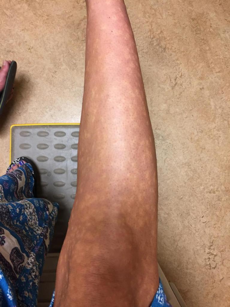 eczema__edited-768x1024