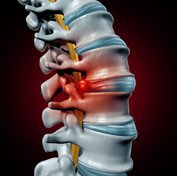 3D illustration of herniated disc to undergo an anterior cervical disc replacement by Sierra Spine Institute