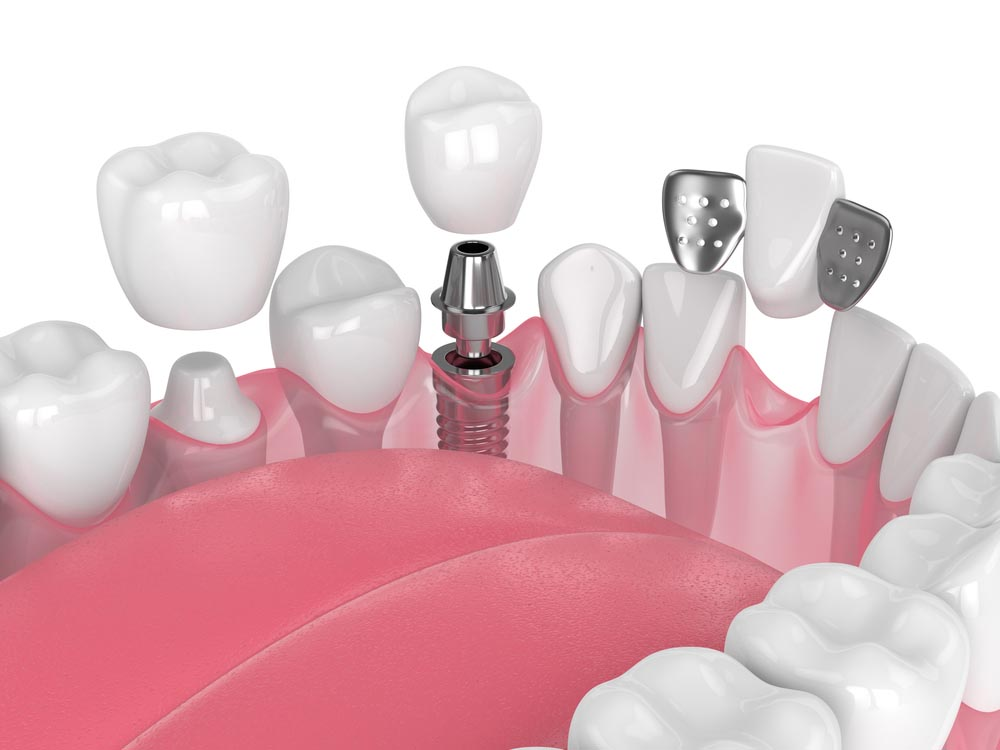 3d render of jaw with dental implants and bridges over white background