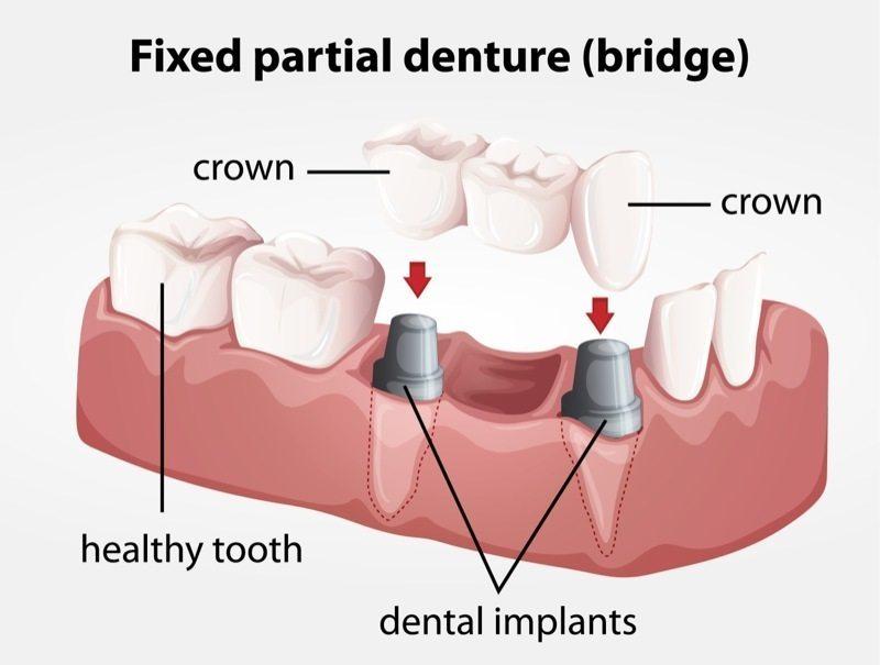 dental-crown-diagram
