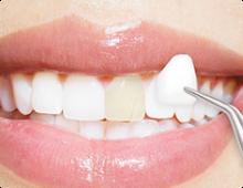 Dental Crowns/Veneers