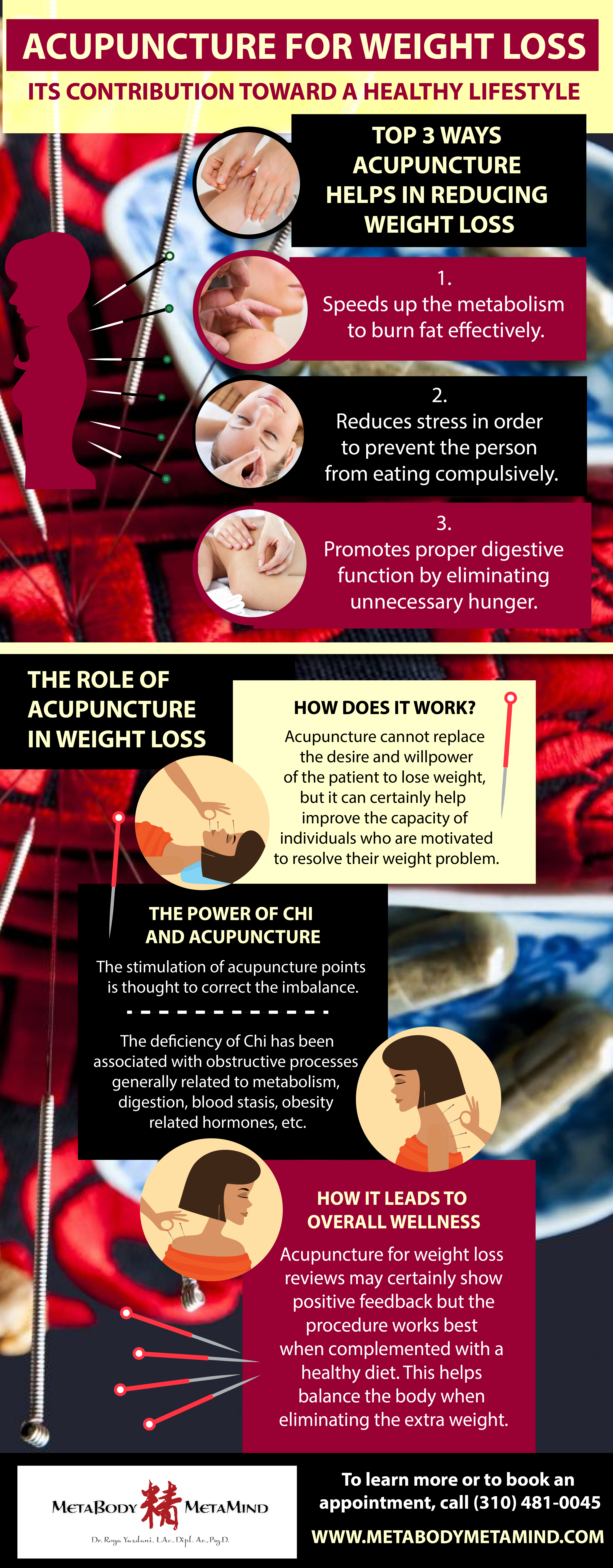 Top 3 Ways Acupuncture Helps In Reducing Weight Loss