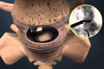 Minimally Invasive Lumbar Fusion