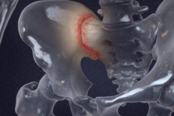 Sacroiliac Joint Disorders