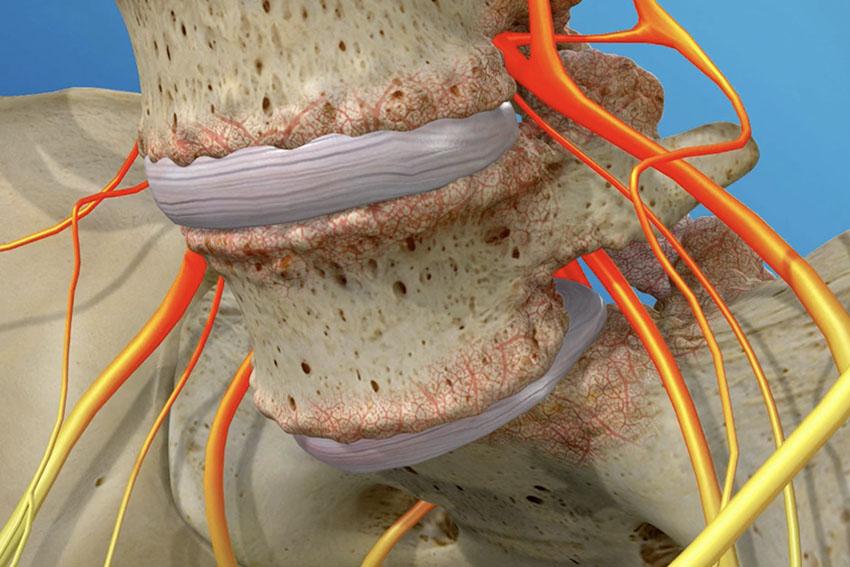 bone spur spondylolithesis