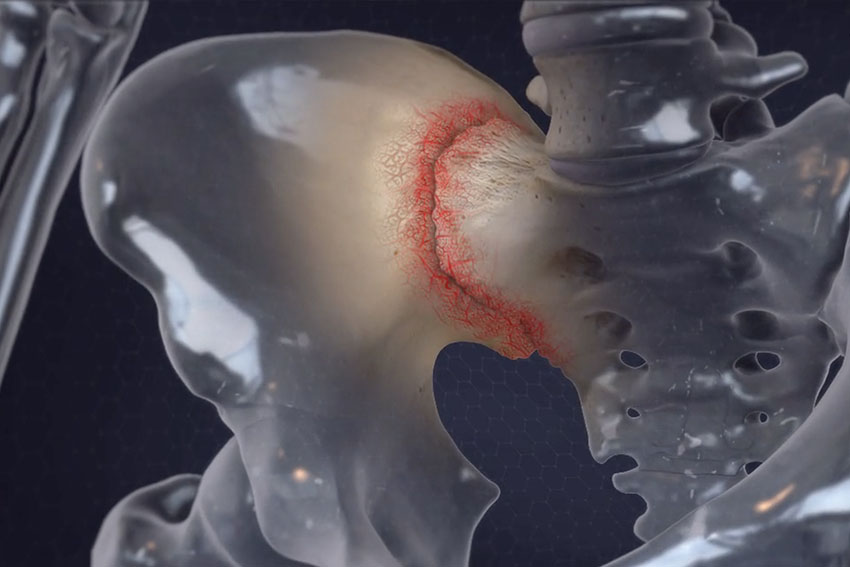 SI (sacroiliac) Joint