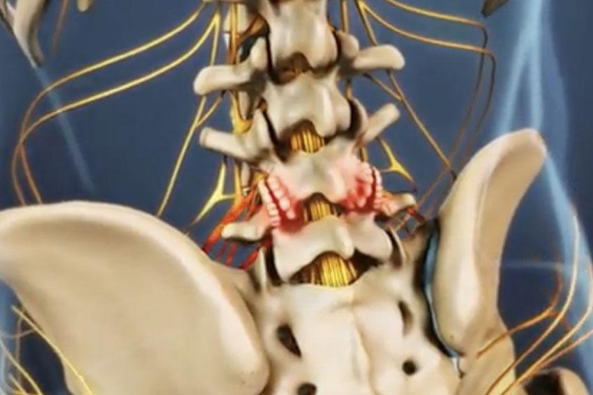 spine arthritis