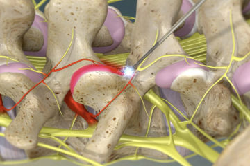 Facet Thermal Ablation