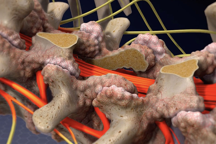 Endoscopic Laminectomy