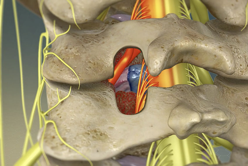 spinal vertebrae