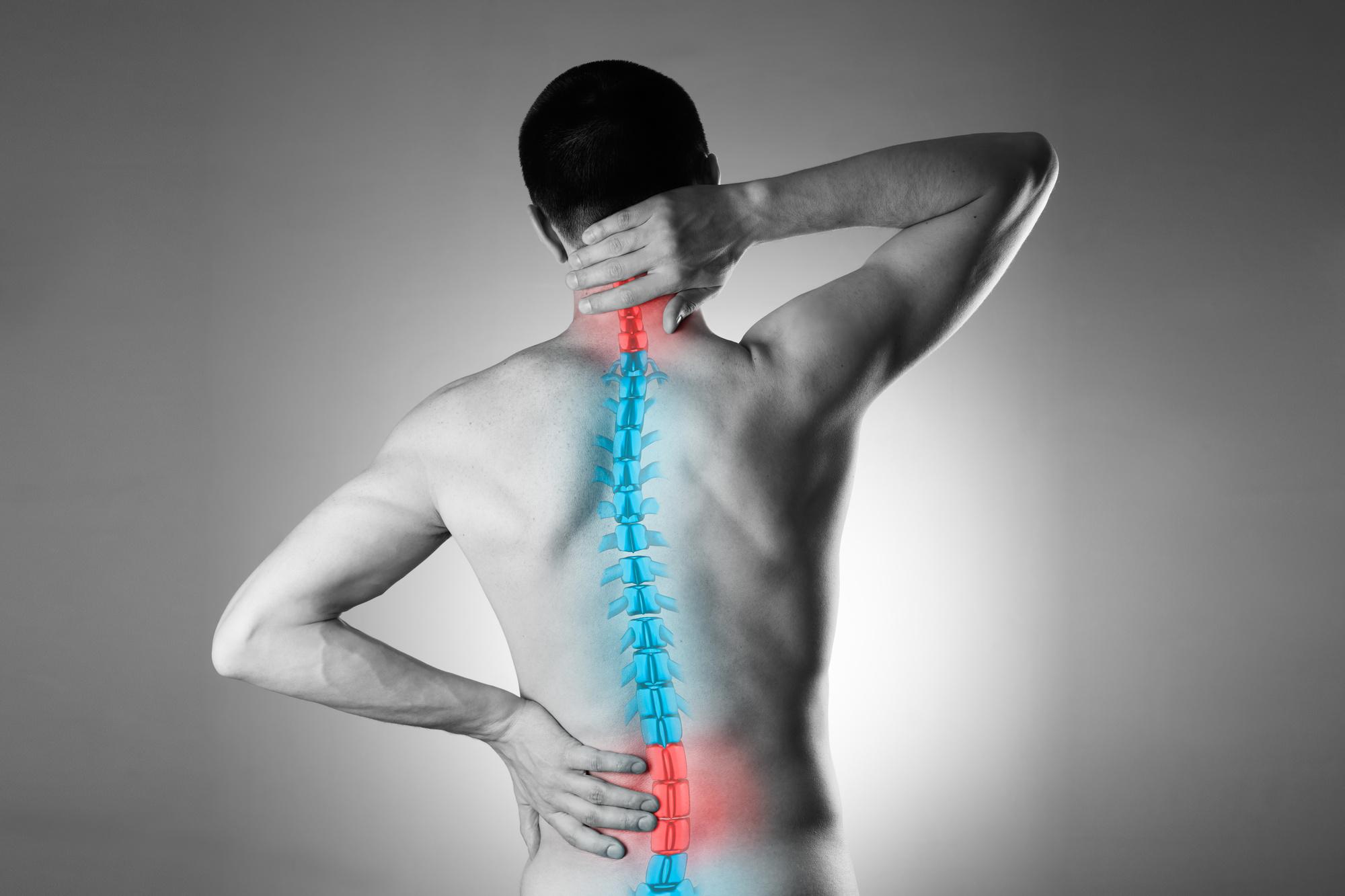 arthritis of the spine