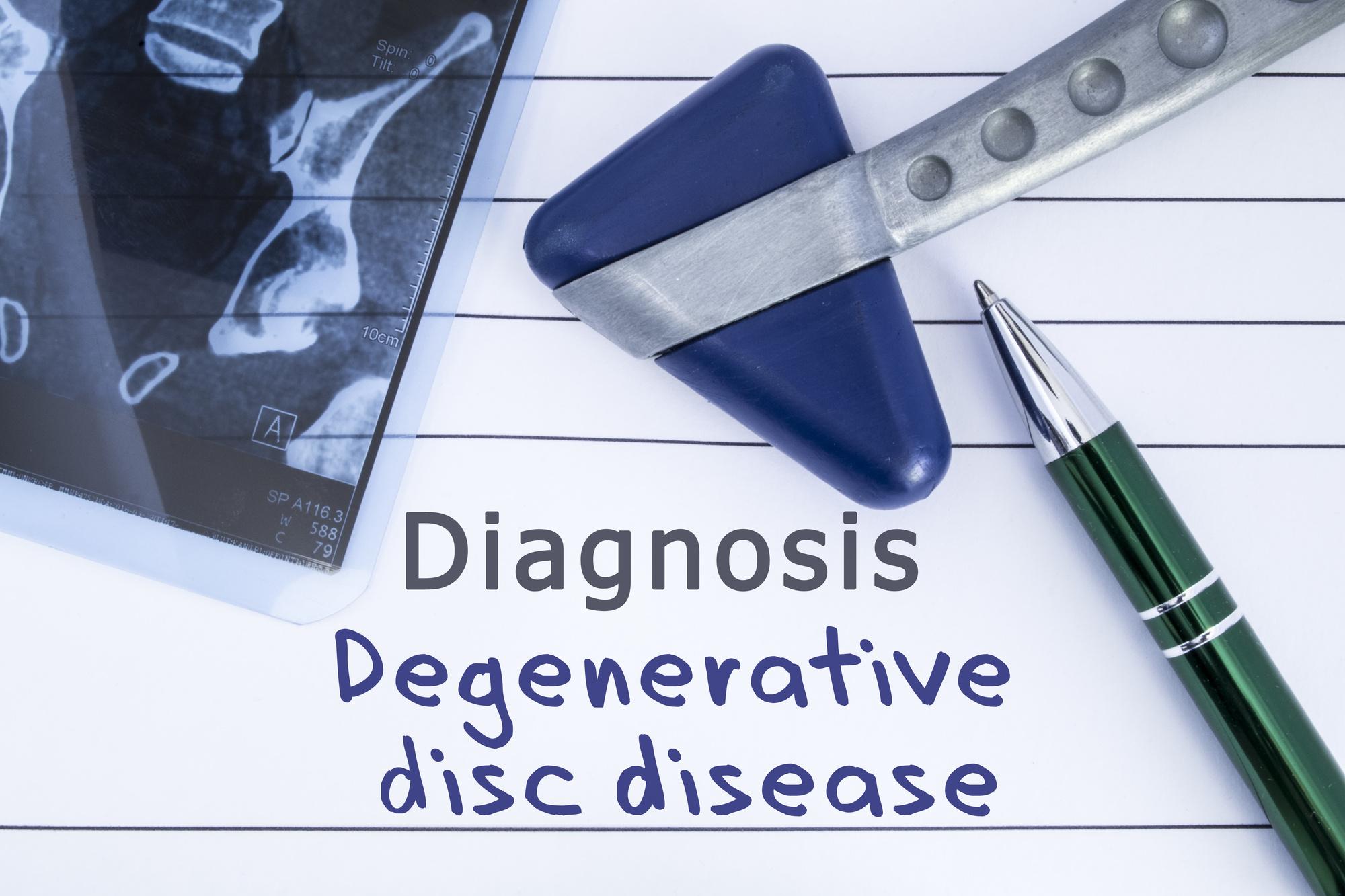 degenerative disc disease treatment