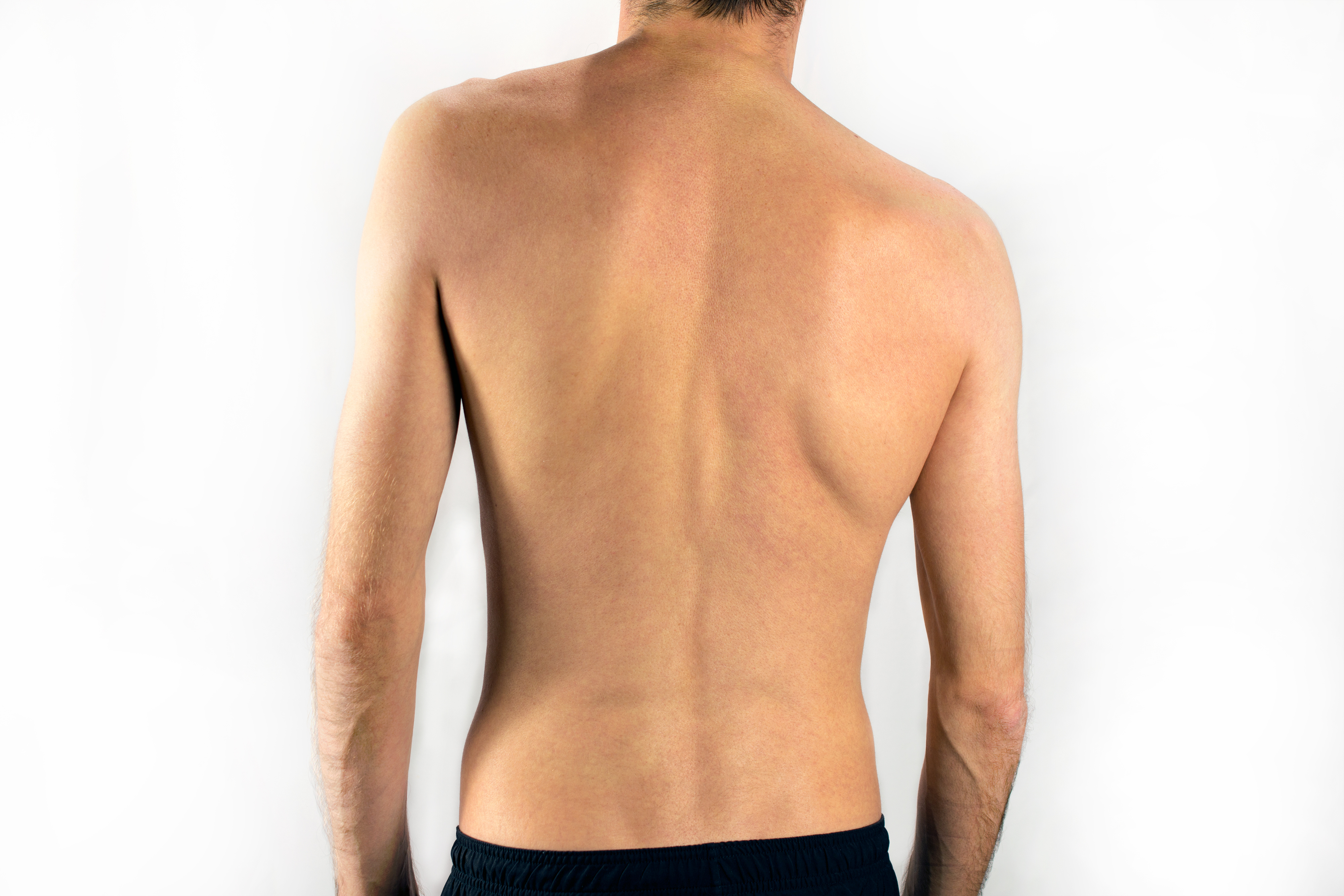 how to tell if you have scoliosis