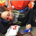 眼镜被射瞎的香港女孩